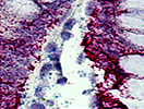 QuantiGene® ViewRNA Assay